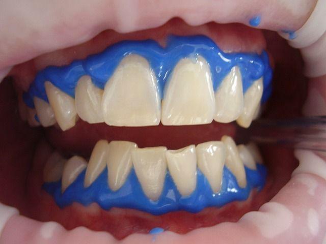 Blanqueamiento dental - Caracas