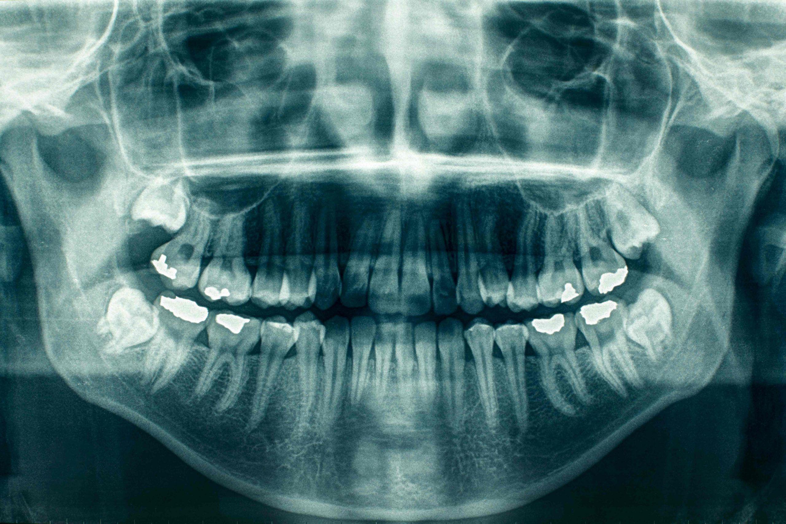 Odontología Forense - Imagen de una Radiografía Panorámica