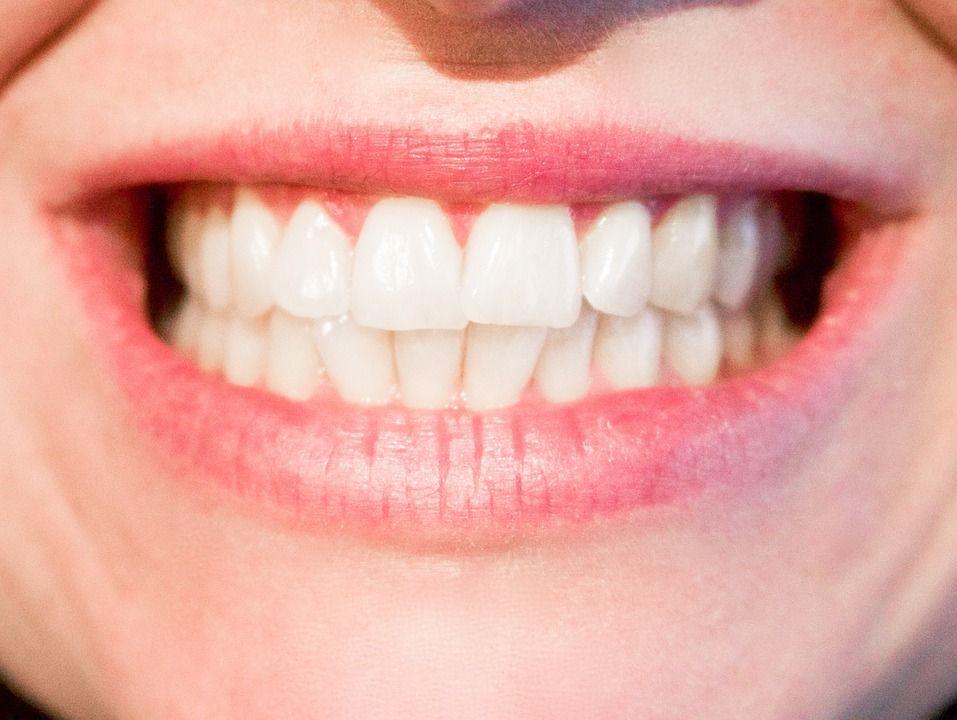 Ortodoncia y Esmalte Dental: Dr. Alfredo Natera