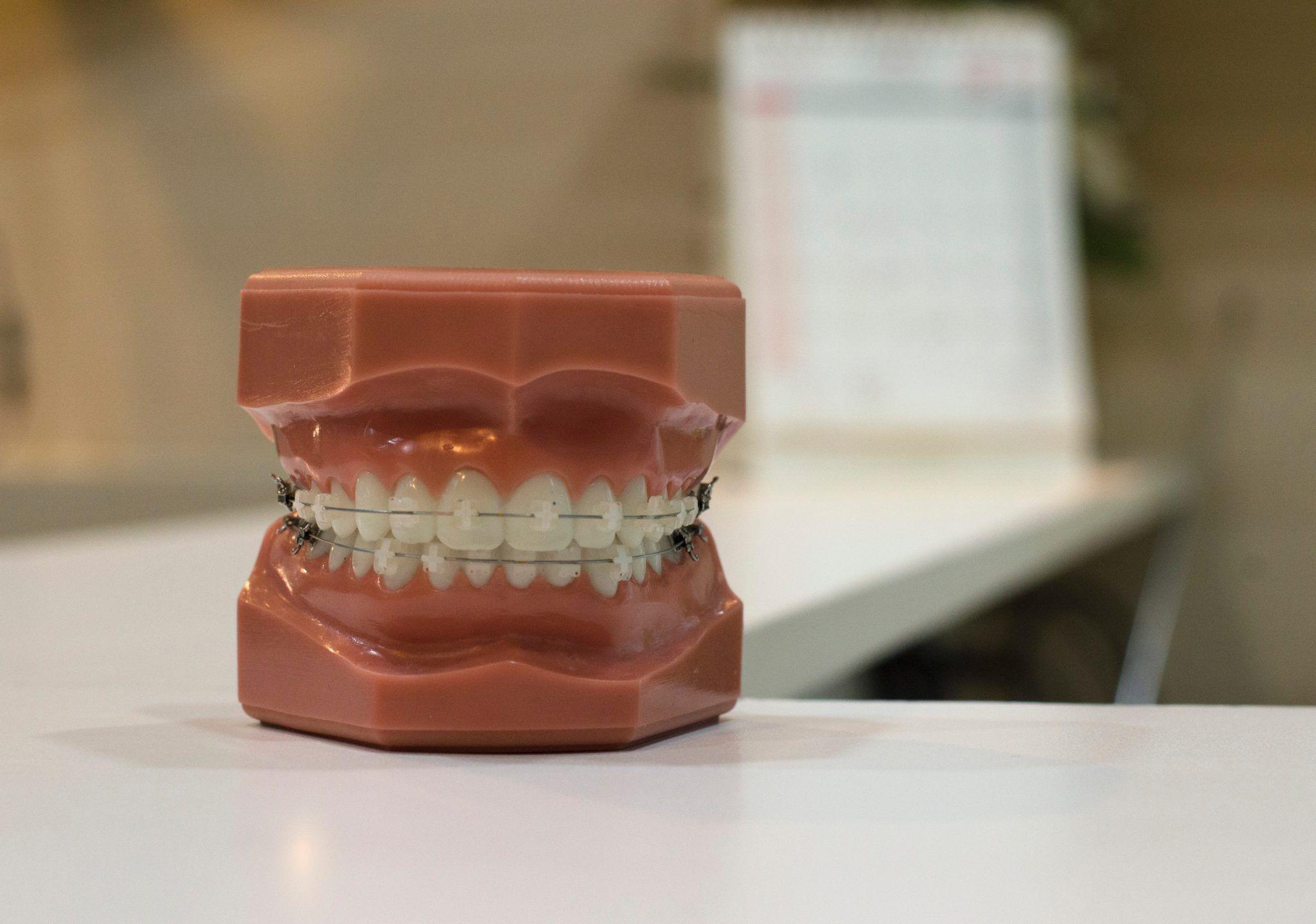 Los Ortodoncistas hablan sobre los Pega Brackets (II)