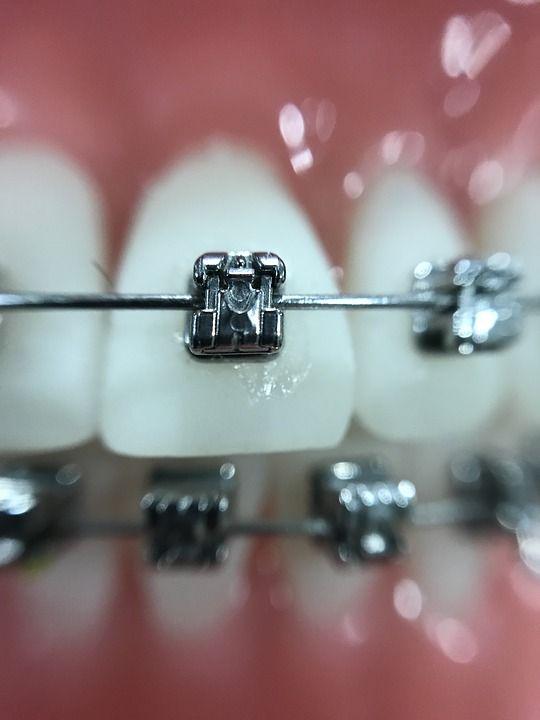 Los ortodoncistas y los pega-brackets