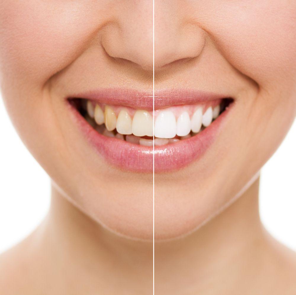 Blanqueamiento dental: Seguridad