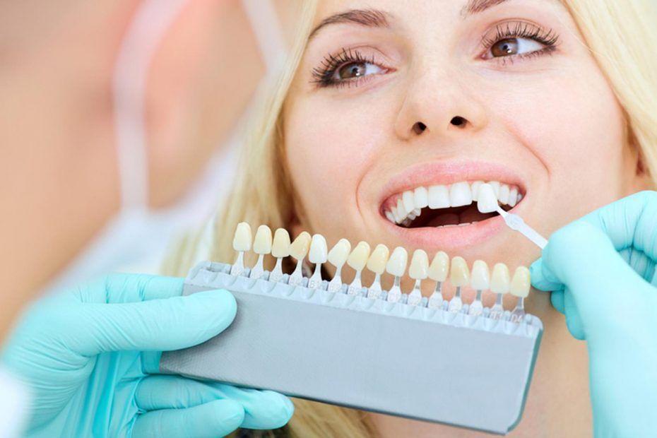 Blanqueamiento dental y su seguridad