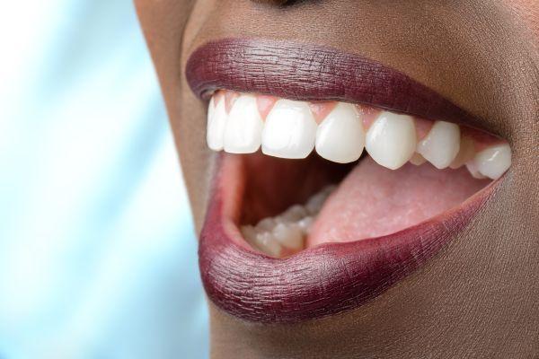 Cómo blanquear tus dientes - Caracas