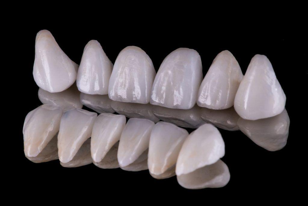 Coronas dentales y blanqueamiento dental - Caracas