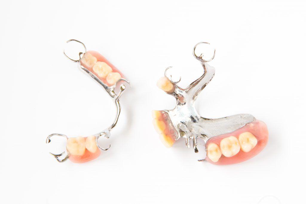 Cada prótesis dental removible tiene un diseño único
