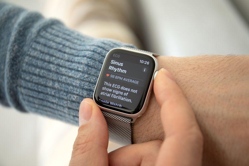 Internet de las cosas - Apple Watch