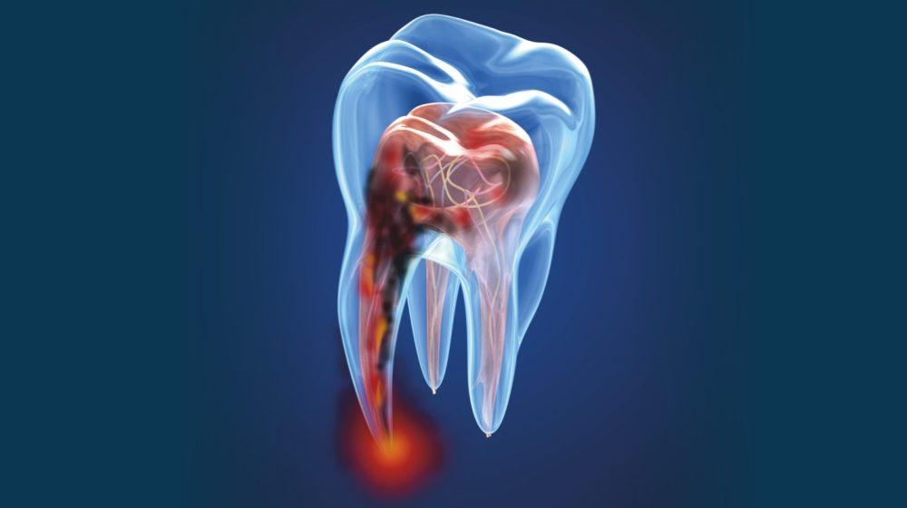 Endodoncia - Pulpa dental