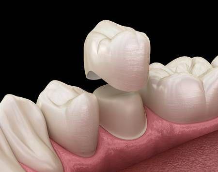 Coronas dentales - Prótesis fija